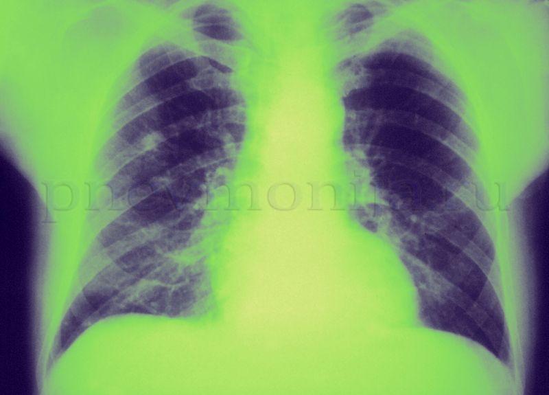 деструктивная пневмония на