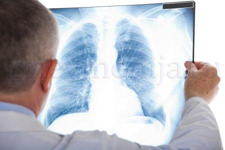Способы лучевой диагностики
