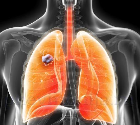 образовавшийся абсцесс легкого при септической пневмонии