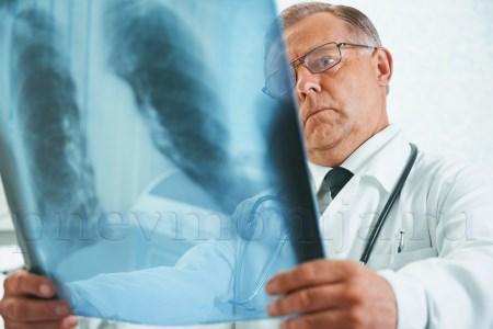Симптомывнутрибольничноговида болезни фото