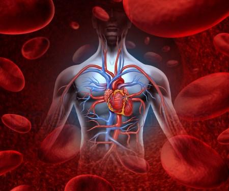 Пневмония после инфаркта сердца