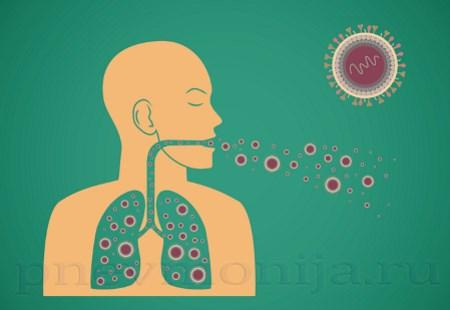 Бактериальная пневмония - обзор фактов заболевания