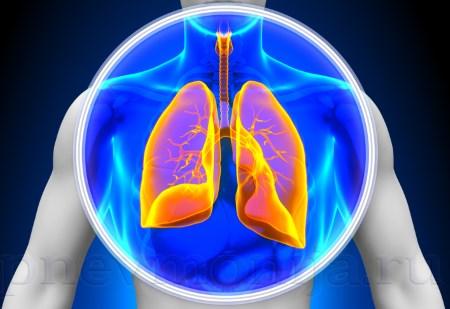 Воспаление легких при раке крови