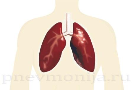 мелкоочаговая пневмония