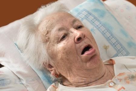пневмония при инсульте