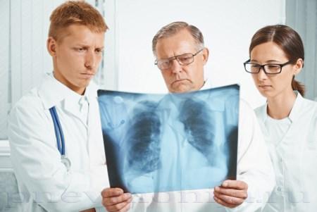 тотальная пневмония на рентгеновском снимке