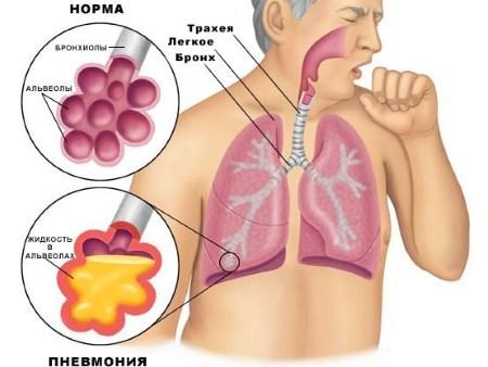 жидкость в альвеолах при пневмонии