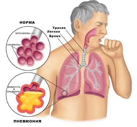 масляная пневмония
