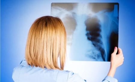 неспецифическая пневмония