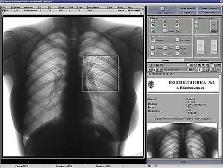 Плюсы цифровой флюорографии