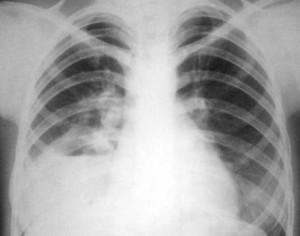 Рентгенологическая диагностика пневмоний