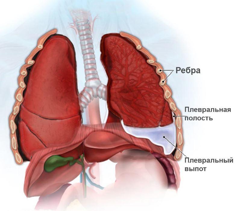 схема расположения плевральной полости