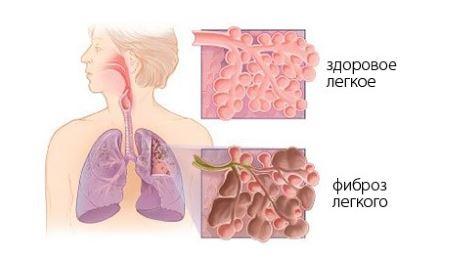 Электронные сигареты и пневмония