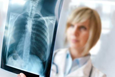 Дифференциальная диагностика рака легких и пневмонии