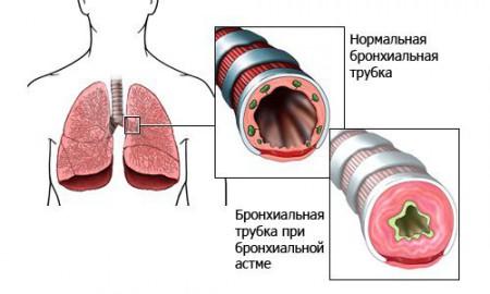 бронхиальная трубка при астме