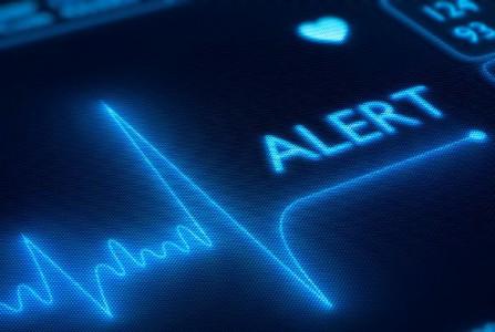 монитор ритмов сердца