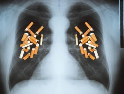 Курение вызывает ХОБЛ