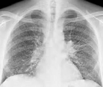 Рак легких на рентгеновском снимке