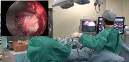 торакоскопическая операция