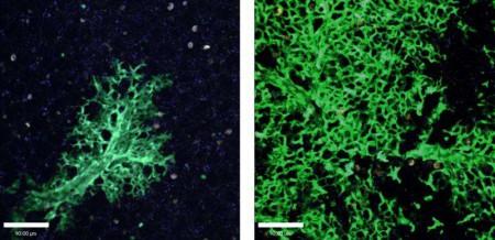 Легочная ткань после трансплантации стволовых клеток