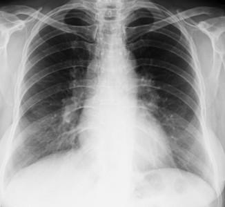 Формы поражения легких