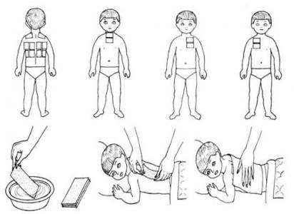 Правила проведения процедуры