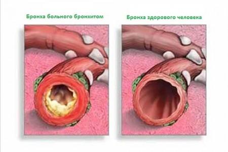 Симптомы острого трахеобронхита