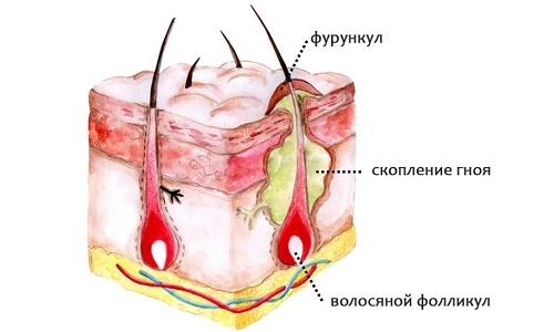 Симптомы кожного стафилококка