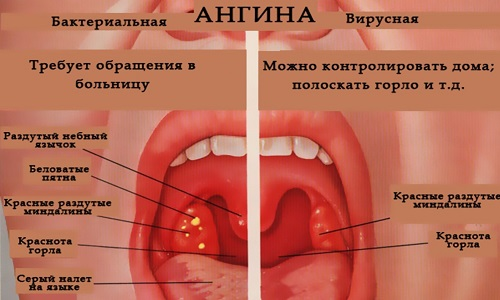 Причины и симптомы ангины