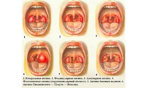 Как лечить катаральную, фолликулярную и лакунарную формы?