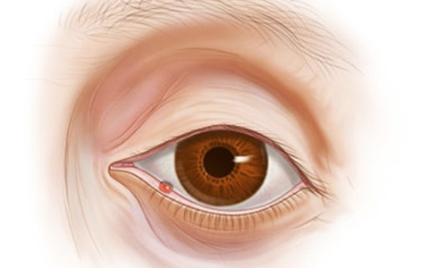 Чем опасна стафилококковая инфекция?
