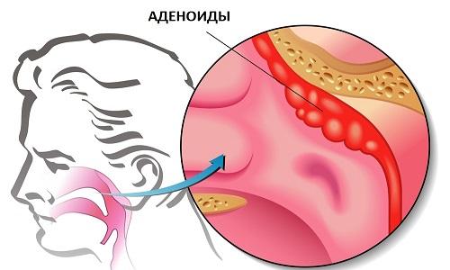 Аденоиды как показание к промыванию носа методом Кукушка