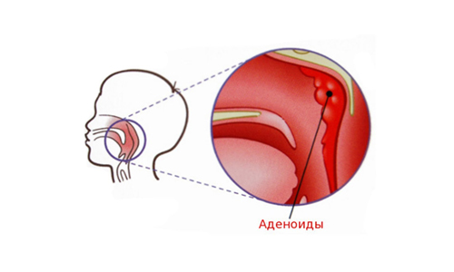 Схема аденоидов