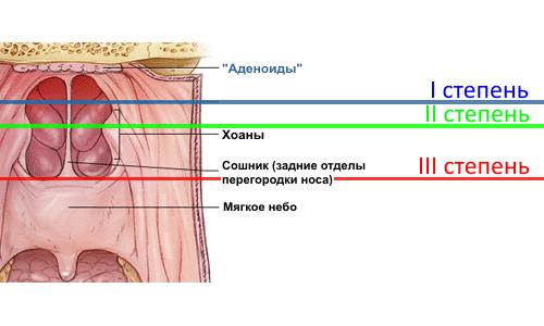 Степени разрастания аденоидной ткани