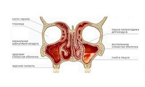 Сравнение нормальной пазухи носа и больной гайморитом
