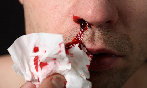 Проблема кровотечения из носа