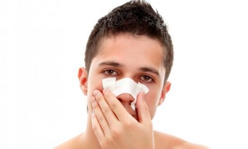 Проблема носового кровотечения у взрослых