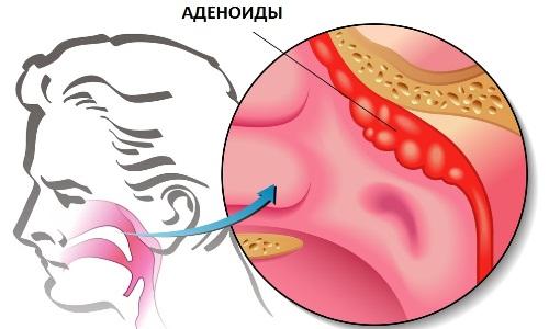 Причины воспаления носоглоточной миндалины