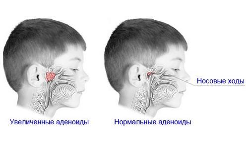 Аденоиды в организме ребенка