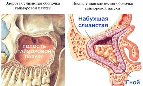 Клинические проявления катарального синусита