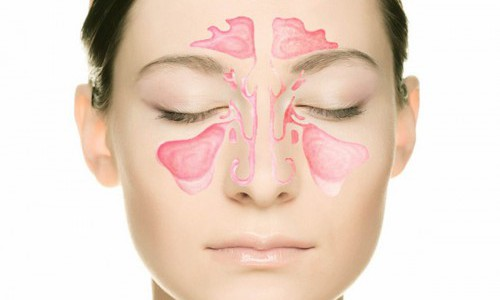Почему при простудных заболеваниях начинает болеть голова? фото