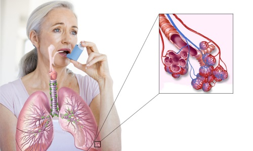 Причины, классификация и симптомы болезни фото