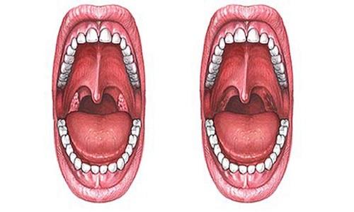 Ротовая полость до и после удаления аденоидов