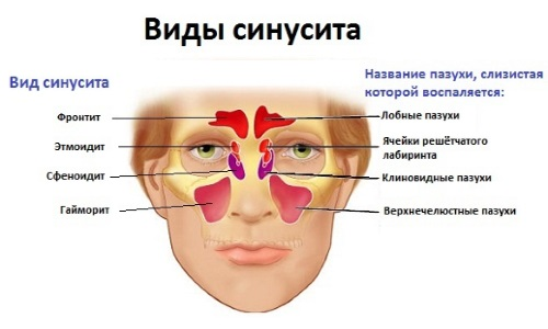 Особенности применения при других синуситах