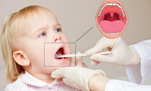 Аденоиды у малыша