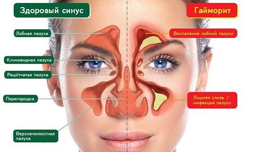 Здоровый синус и гайморит
