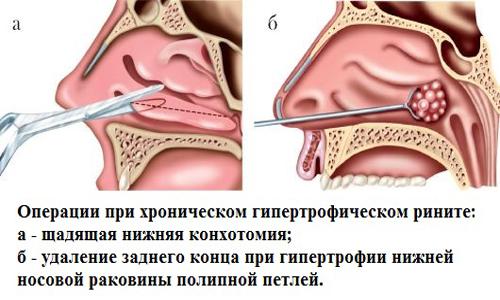 Хирургический метод лечения гипертрофического ринита