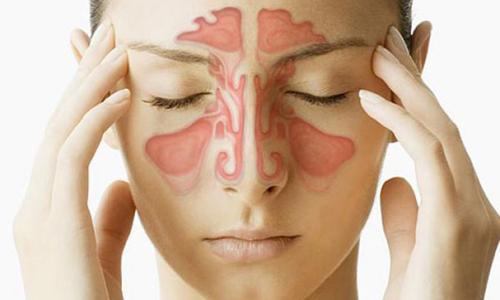 Головная боль при воспалении носовых пазух