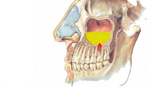 Причины «зубного» гайморита