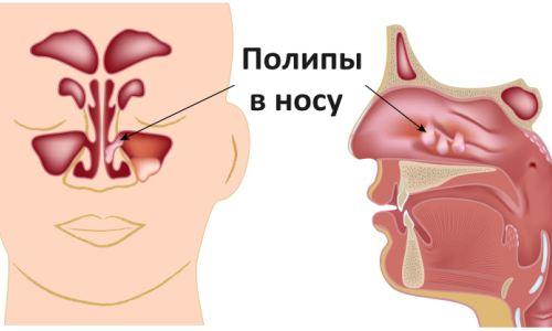 Что такое полипоз носа?